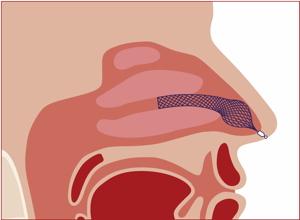 AlaxoLito Nasal Stent