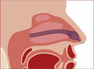 AlaxoLito Plus Nasal Stent